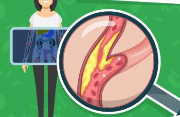 [Blog #42] Cholesterol